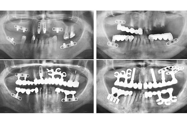 знімок після кожного етапу операції