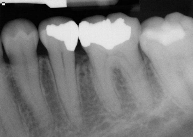 знімок зуба