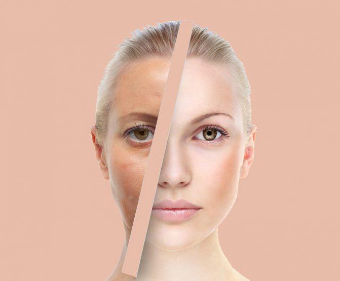 Солимо обличчя! Дивовижне омолодження шкіри