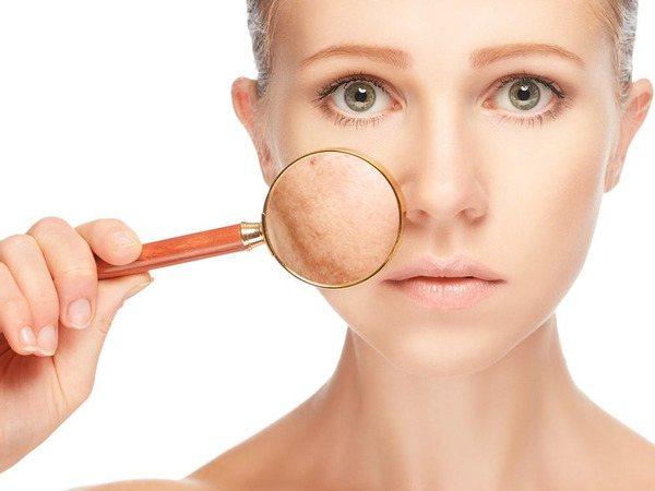 Сонцезахисний крем не тільки захисти шкіру від опіків, але і не дозволить з'явитися алергічної реакції