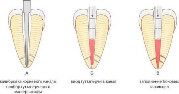 Склад гутаперчевих штифтів в стоматології фото