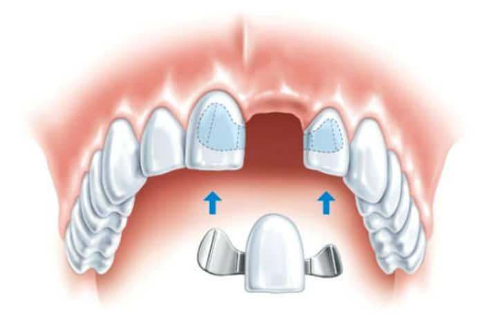 Сучасним методом швидкого відновлення цілісності зубного ряду