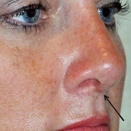 Способи корекції келоїдних рубців після ринопластики
