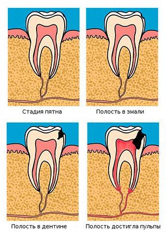 Стадії розвитку карієсу: від плями на зубі до поразки пульповой камери.
