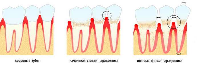 Ступеня рухливості зубів
