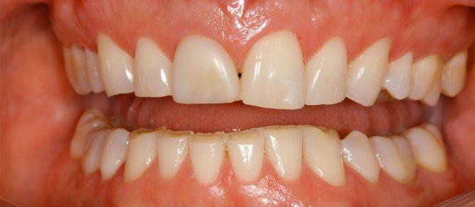 стираемость зубів