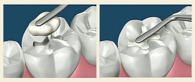 стоматологічні композити