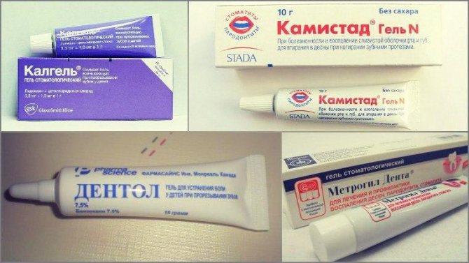 стоматологічні знеболюючі гелі