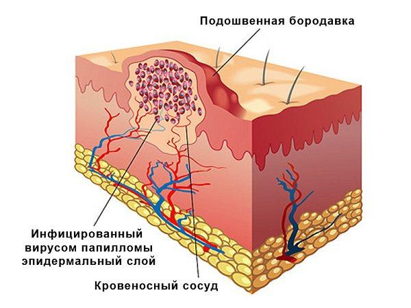 структура шіпіци