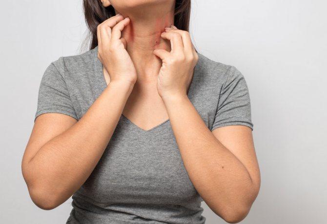 суха шкіра при вагітності причини