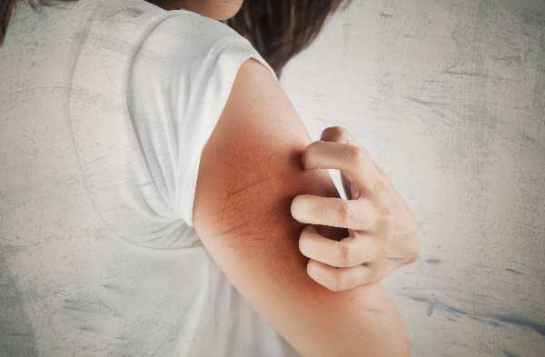 суха шкіра тіла при вагітності