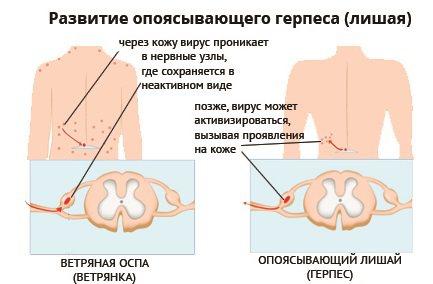 Сухі плями на шкірі: шорсткі, червоні, білі, темні. Фото, причини і лікування у дорослих і дітей