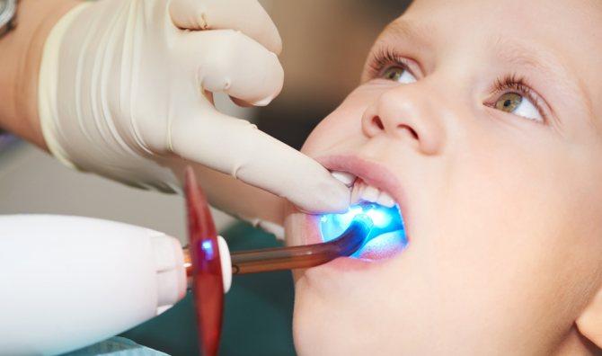 Так проходить пломбування зубів у дитини світловідбиваючими композитами