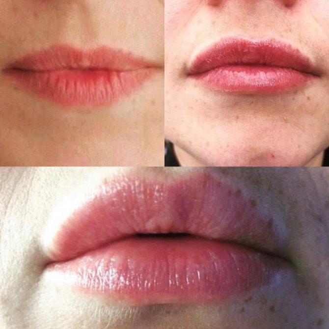 Техніки збільшення губ