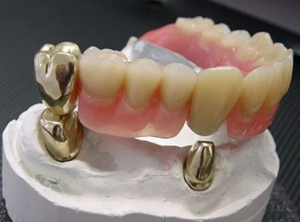 Телескопічні протези зубні на верхню щелепу відгуки