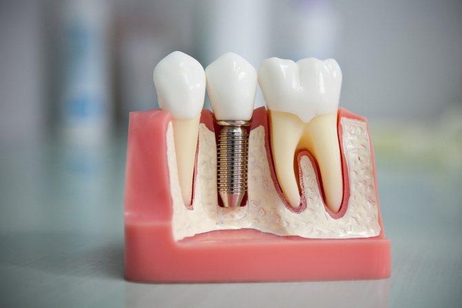 Титановий штифт в зубі