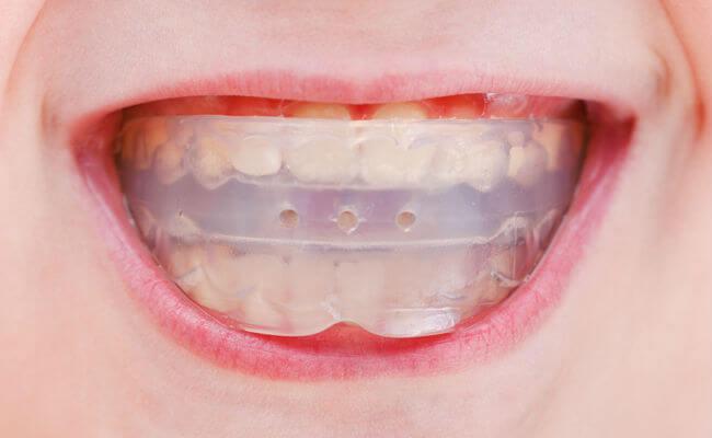 Трейнер для зубів і його різновиди (Т4К, Т4а, Т4в): фото до і після