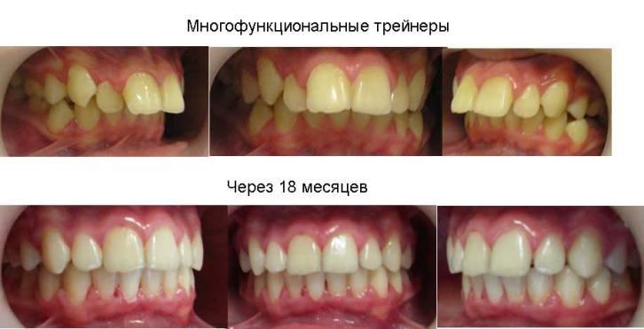 Трейнери для вирівнювання зубів