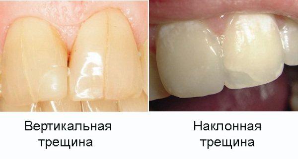 Тріщина емалі на передньому зубі