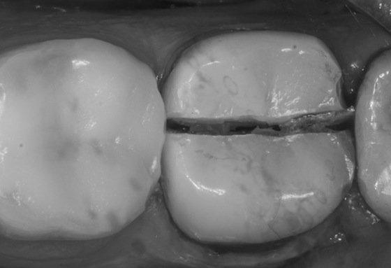 Тріщини на керамічній зубної коронки