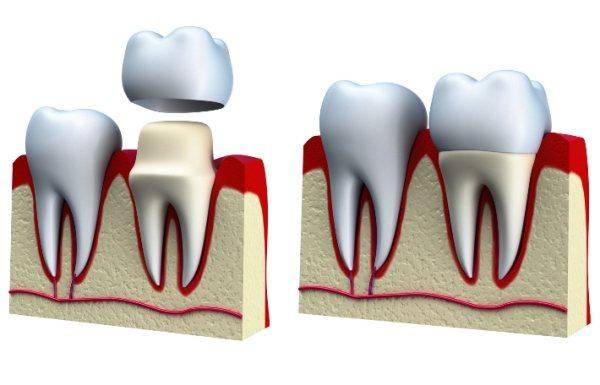 Тріщини на зубній емалі лікування