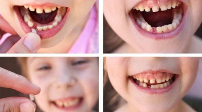 третя причина кривих зубів - втрата молочних зубів в ранньому дитинстві