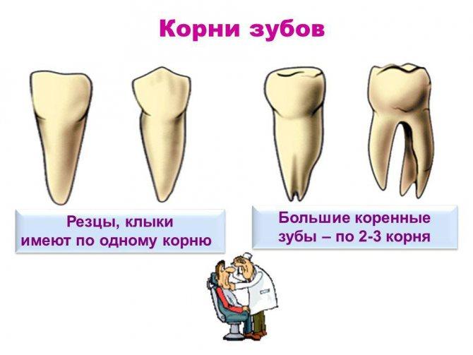 Видалення кореня зуба