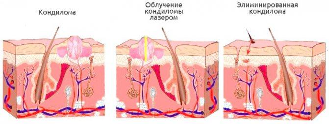 Видалення лазером новоутворень на шкірі, наростів, папілом. Як проходить процедура, ціна, відгуки