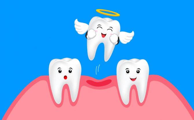Видалення молочного зуба в картинках