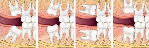 Видалення ретінірованного дістопірованних зуба