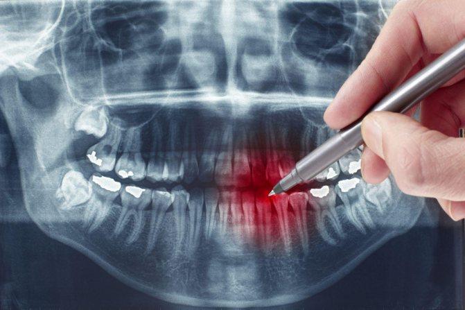 Видалення зуба при грудному вигодовуванні