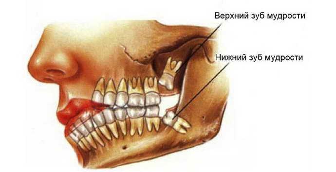 Видалення зубів мудрості на верхній щелепі