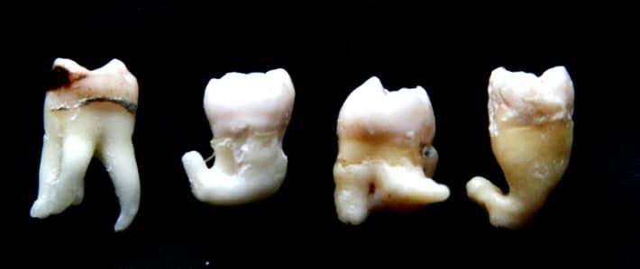 Видалення зубів мудрості