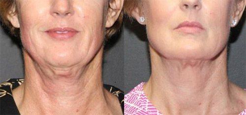 догляд для шкіри шиї