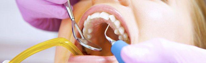 Ультразвукова чистка зубів в Краснодарі | Ортодонтікс