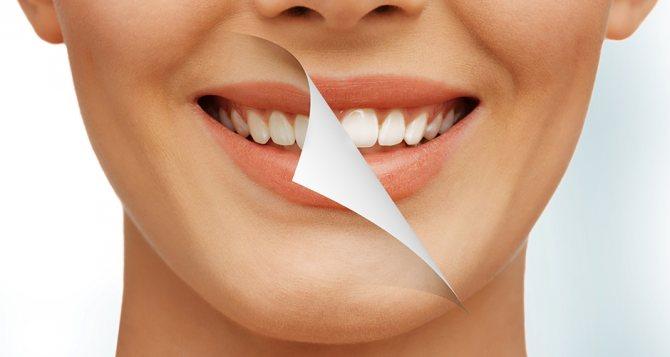 Ультразвукова чистка зубів в Красноярську - Стоматологія альденте