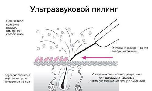 ультразвуковий пілінг