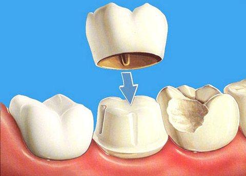 Вибір тривалості коронки на зуб
