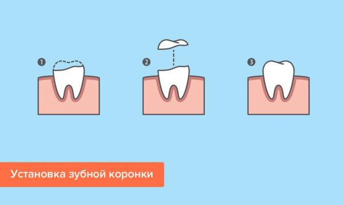 Установка зубної коронки в картинках