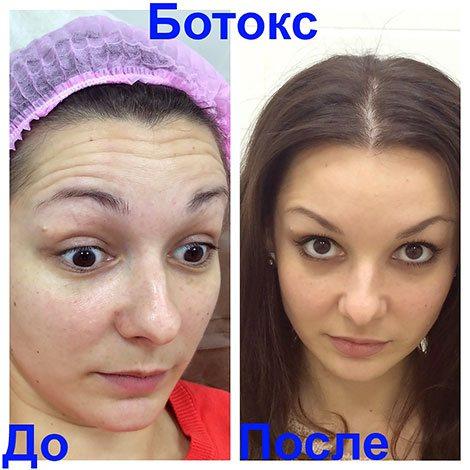 Усунення динамічних зморшок на лобі ботоксом (до і після процедури)