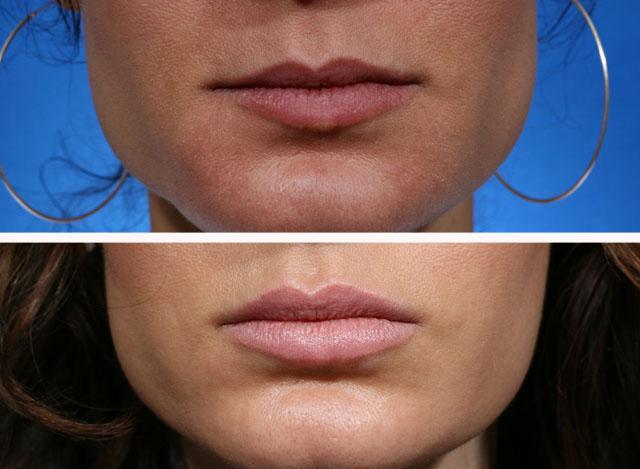 Збільшення губ препаратом Ювідерм