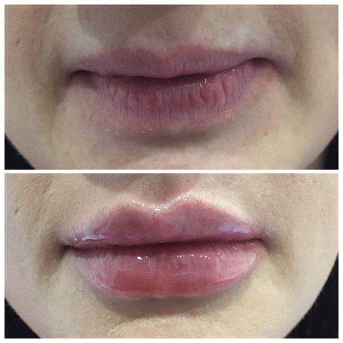 збільшення губи за допомогою макіяжу