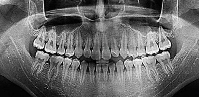 Узі і рентген чим відрізняються щелепи