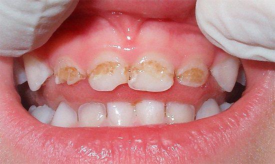 У більшості випадків сильне руйнування молочних зубів у дитини є багато в чому провиною батьків, які не приділили профілактичним заходам належної уваги.