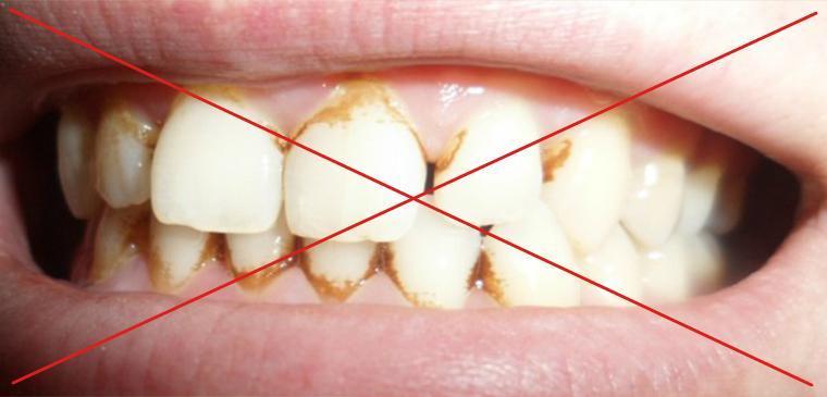 В яких випадках небажано освітлювати зуби