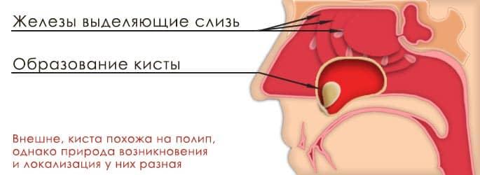 верхньощелепні пазухи