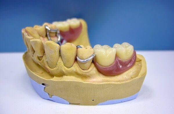вид забного протеза бюгельного типу