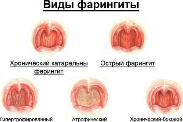 види фарингіту