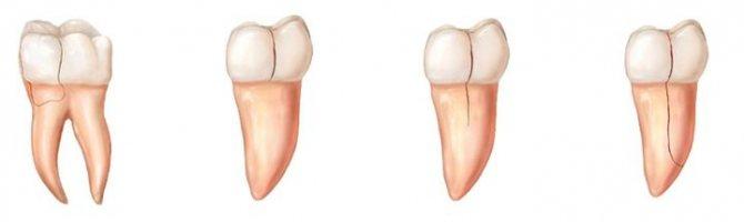 Види переломів зубів