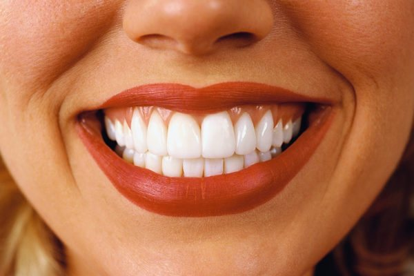 Види пломб для зубів